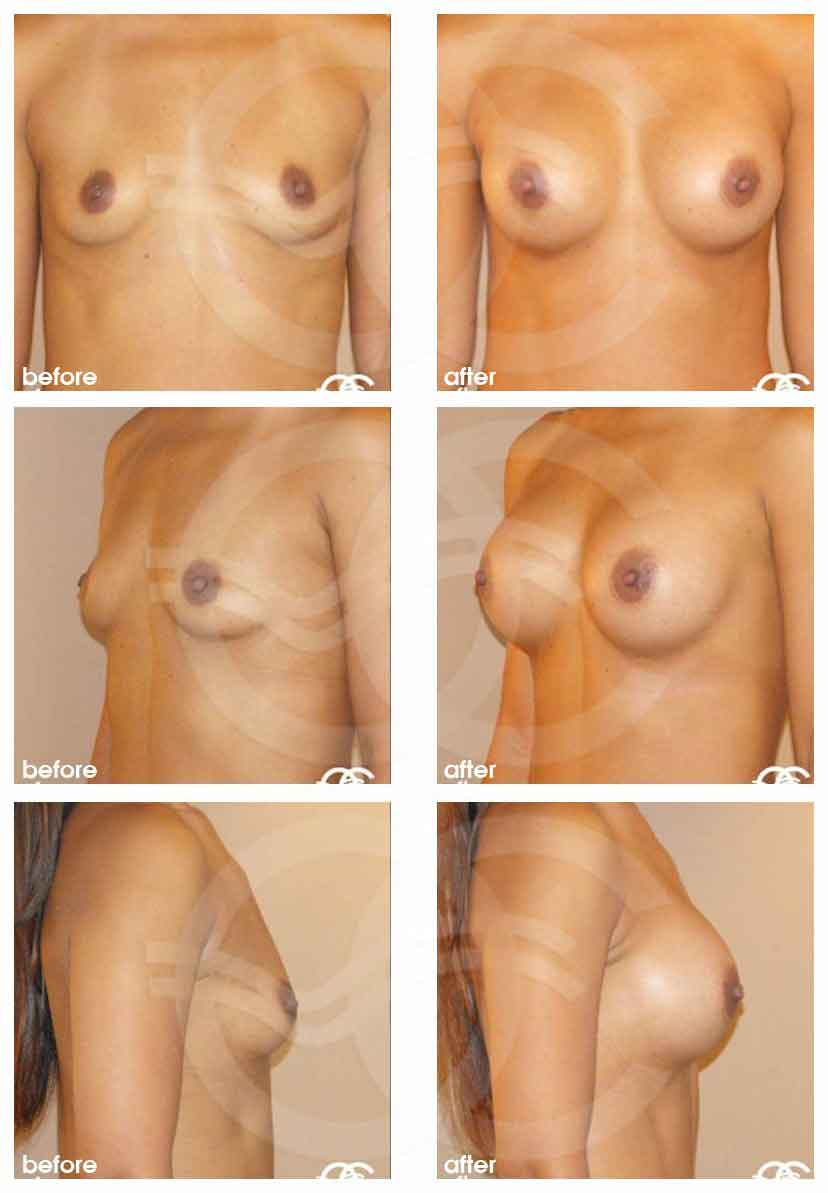 Augmentation mammaire Ocean Clinic Marbella Espagne