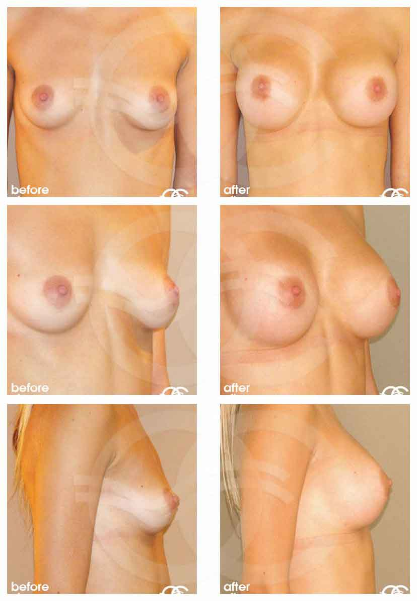 Маммопластика Марбелья Испания Ocean Clinic