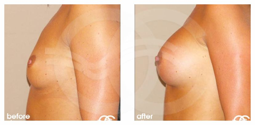 Маммопластика До после Фото Марбелья Испания Ocean Clinic