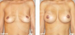 Breast Augmentation Before and After Photo Case 05 Marbella Ocean Clinic