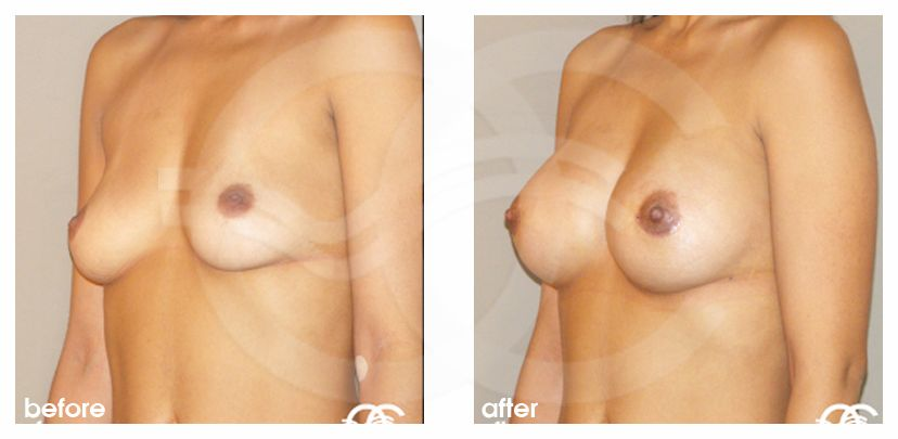 Breast Augmentation Implants Before After 210cc Photo side Marbella Ocean Clinic