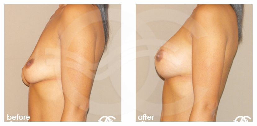 Breast Augmentation Implants Before After 210cc Photo profile Marbella Ocean Clinic