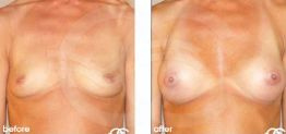 Breast Augmentation Before and After Photo Ocean Clinic case 06 Marbella Málaga
