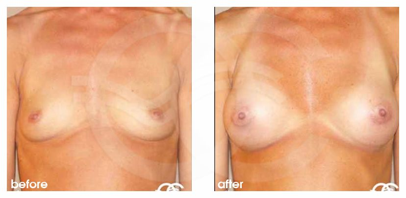 Breast Augmentation Implants Before After 280cc Photo frontal Marbella Ocean Clinic