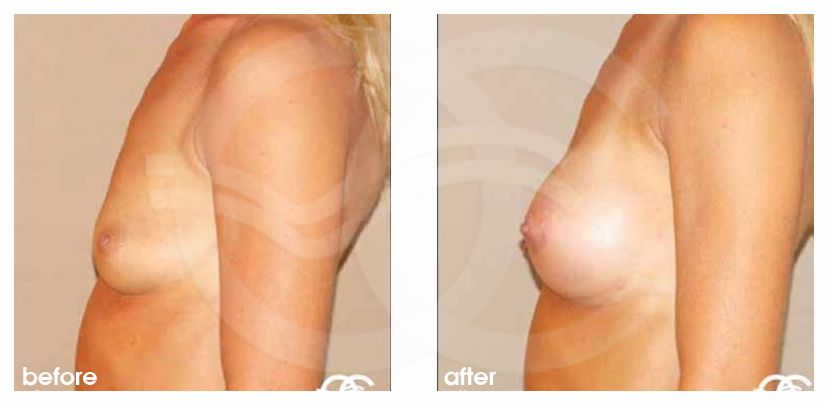 Brustvergrößerung 19 BRUSTIMPLANTATE SILIKON 280CC ANATOMISCH HIGH PROFILE before after perfil