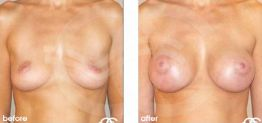 Breast Augmentation Before and After Photo Ocean Clinic case 07 Marbella Málaga