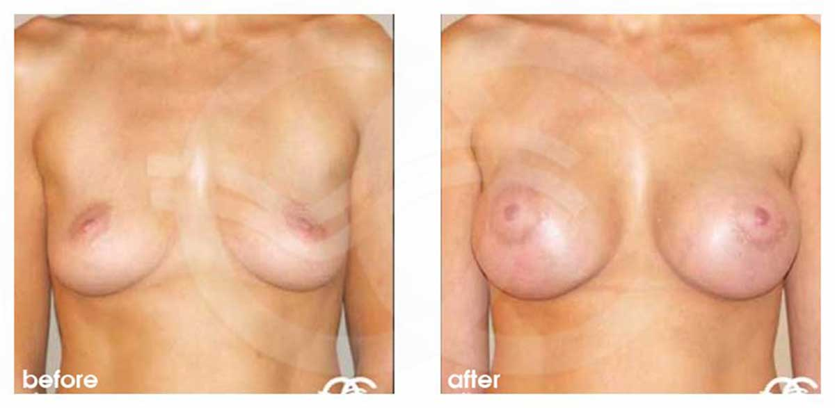Augmentation mammaire Implants en silicone 325cc profil haut ante/post-op profil
