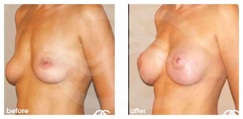 Augmentation mammaire Implants en silicone 325cc profil haut ante/post-op lateral
