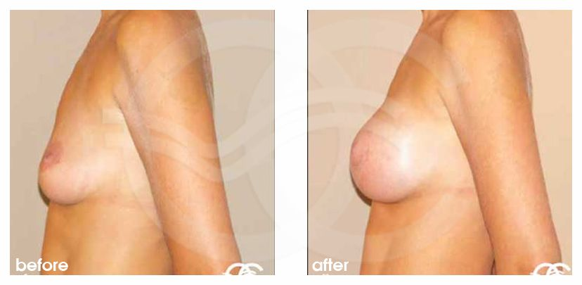 Breast Augmentation Implants Before After 325cc Photo profile Marbella Ocean Clinic