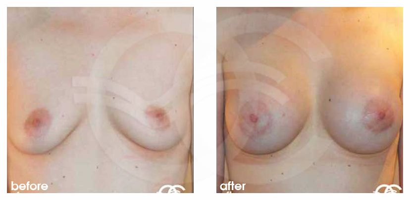 Augmentation mammaire 400cc prothèses en silicone before after forntal