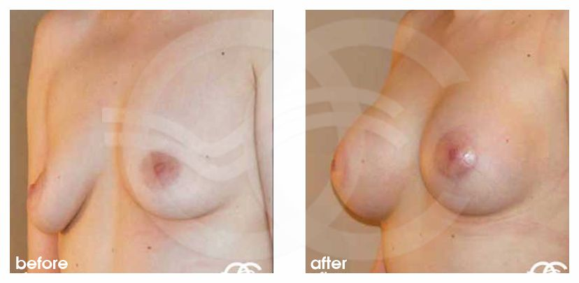 Augmentation mammaire 400cc prothèses en silicone before after side