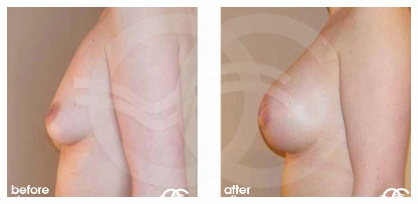 Breast Augmentation Implants Before After 400cc Photo profile Marbella Ocean Clinic