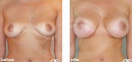 Breast Augmentation Before and After Photo Ocean Clinic case 09 Marbella Málaga