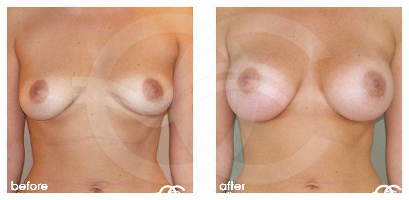 Breast Augmentation Implants Before After 380cc Photo frontal Marbella Ocean Clinic