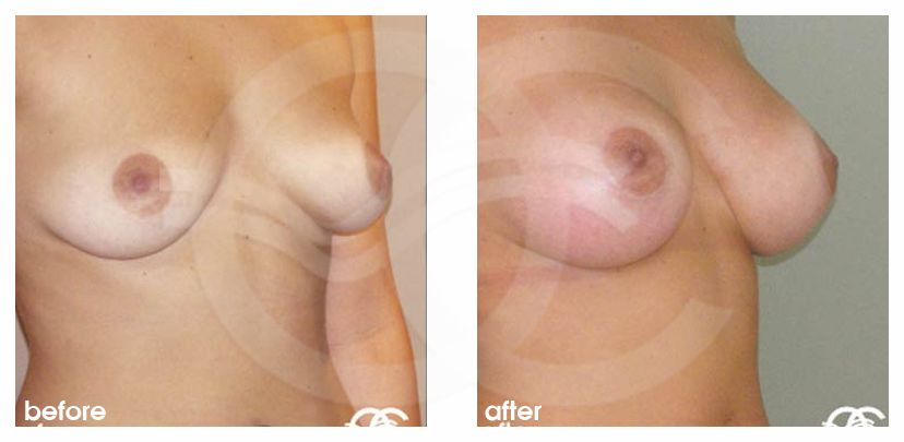 Breast Augmentation Implants Before After 380cc Photo side Marbella Ocean Clinic