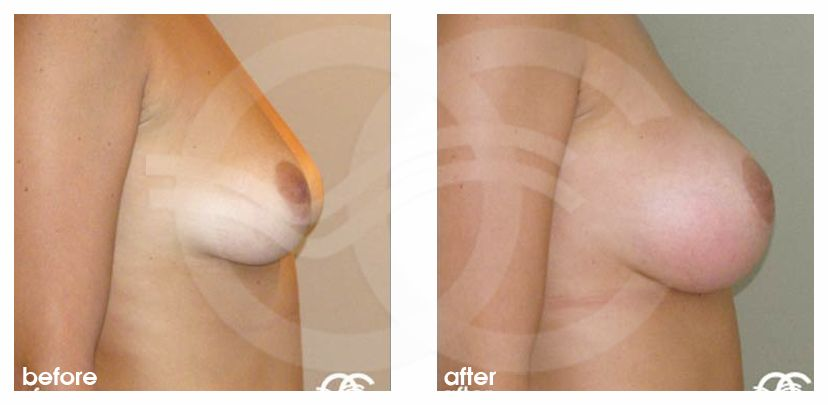 Breast Augmentation Implants Before After 380cc Photo profile Marbella Ocean Clinic