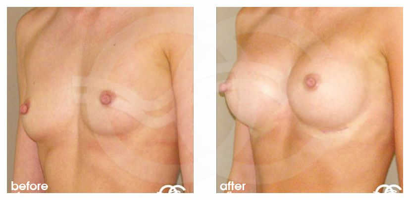 Augmentation mammaire 350cc implants mammaires en silicone profil haut ante/post-op lateral