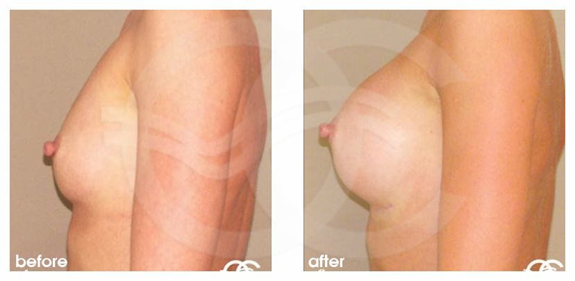Augmentation mammaire 350cc implants mammaires en silicone profil haut ante/post-op retro/lateral