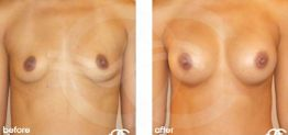 Breast Augmentation Before and After Photo Ocean Clinic case 11 Marbella Málaga