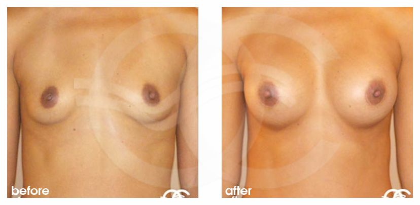 Breast Augmentation 325cc Submuscular before after forntal