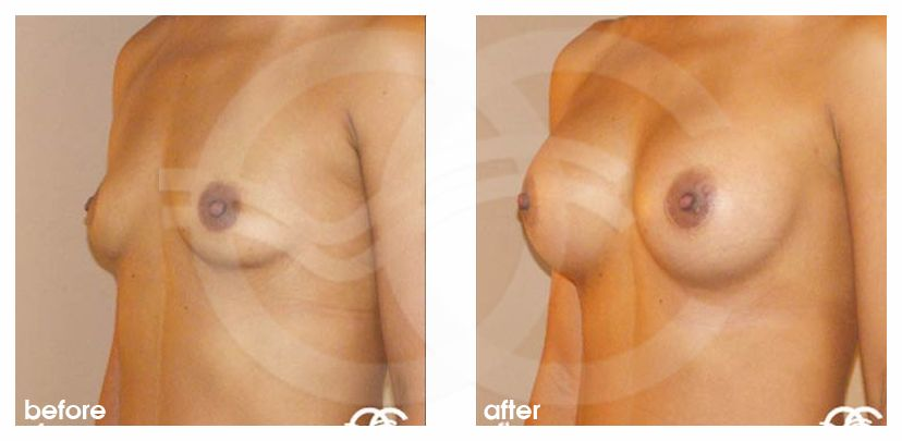 Breast Augmentation Implants Before After 325cc Photo side Marbella Ocean Clinic