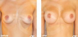 Breast Augmentation Before and After Photo Ocean Clinic case 12 Marbella Málaga