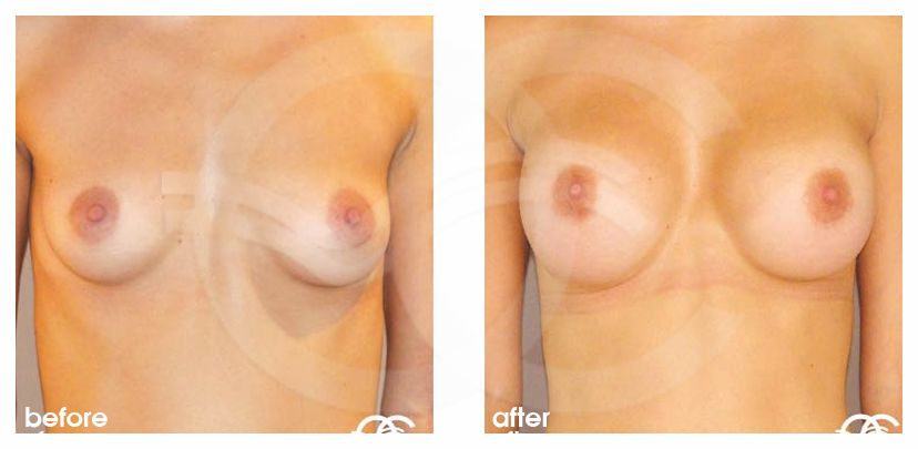 Breast Augmentation Before After Silicone Implants 300cc High Profile Submuscular Photo frontal Ocean Clinic Marbella Spain