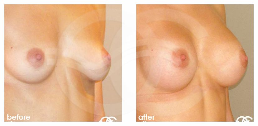 Breast Augmentation Before After Silicone Implants 300cc High Profile Submuscular Photo side Ocean Clinic Marbella Spain