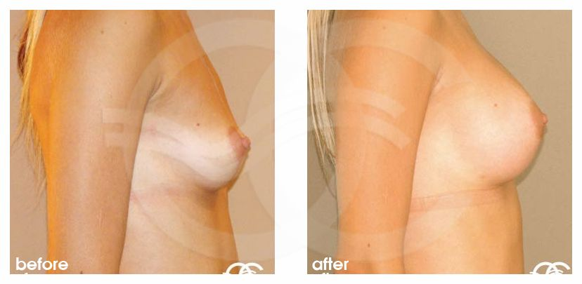 Breast Augmentation Before After Silicone Implants 300cc High Profile Submuscular Photo profile Ocean Clinic Marbella Spain
