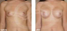 Breast Augmentation Before and After Photo Ocean Clinic case 13 Marbella Málaga