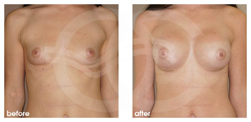 Breast Augmentation Before After Silicone Implants 400cc High Profile Submuscular Photo frontal Ocean Clinic Marbella Spain