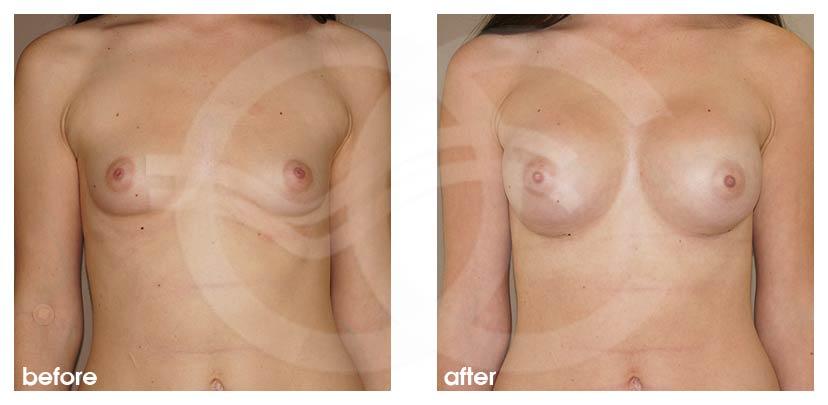 Augmentation Mammaire Avant Après grossir seins 400cc Implants Photo avant, Ocean Clinic Marbella