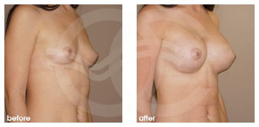Augmentation Mammaire Avant Après grossir seins 400cc Implants Photo côté, Ocean Clinic Marbella