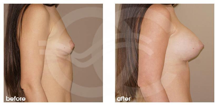 Augmentation Mammaire Avant Après grossir seins 400cc Implants Photo profil, Ocean Clinic Marbella