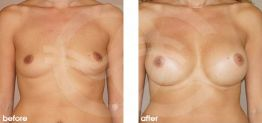 Breast Augmentation Before and After Photo Ocean Clinic case 14 Marbella Málaga