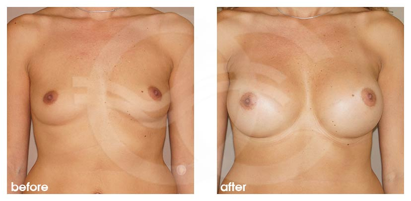 Breast Augmentation Before After Silicone Implants 380cc High Profile Round Photo frontal Ocean Clinic Marbella Spain