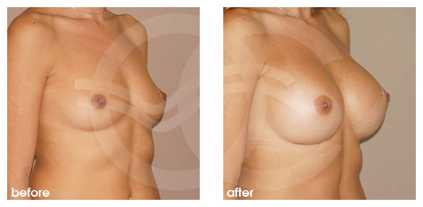 Breast Augmentation Before After Silicone Implants 380cc High Profile Round Photo side Ocean Clinic Marbella Spain