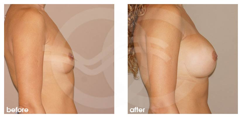 Breast Augmentation Before After Silicone Implants 380cc High Profile Round Photo profile Ocean Clinic Marbella Spain