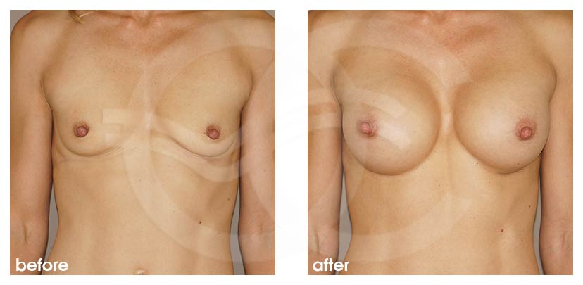Breast Augmentation Before After Silicone Implants 350cc High Profile Round Photo frontal Ocean Clinic Marbella Spain