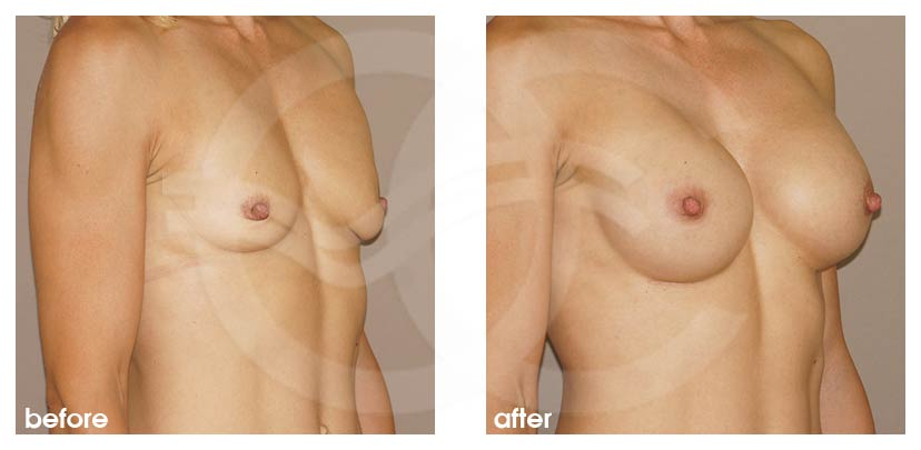 Breast Augmentation Before After Silicone Implants 350cc High Profile Round Photo side Ocean Clinic Marbella Spain