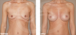Breast Augmentation Before and After Photo Ocean Clinic case 16 Marbella Málaga