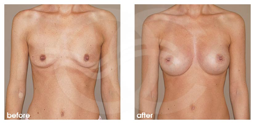 Breast Augmentation Before After Silicone Implants 375cc Anatomical High Profile Photo frontal Ocean Clinic Marbella Spain