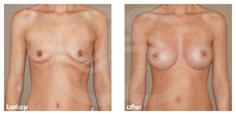 Brustvergrößerung Vorher Nachher Brustimplantate Silikon 375cc Anatomisch High Profile Foto vorne Ocean Clinic Marbella