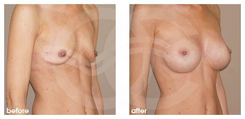 Brustvergrößerung Vorher Nachher Brustimplantate Silikon 375cc Anatomisch High Profile Foto seitlich Ocean Clinic Marbella