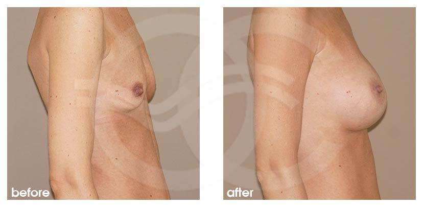 Brustvergrößerung Vorher Nachher Brustimplantate Silikon 375cc Anatomisch High Profile Foto profil Ocean Clinic Marbella