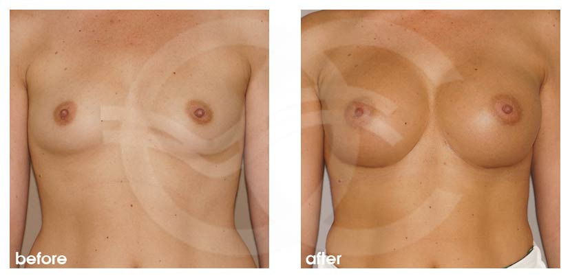 Breast Augmentation Before After Silicone Implants 350cc Round High Profile Photo frontal Ocean Clinic Marbella Spain