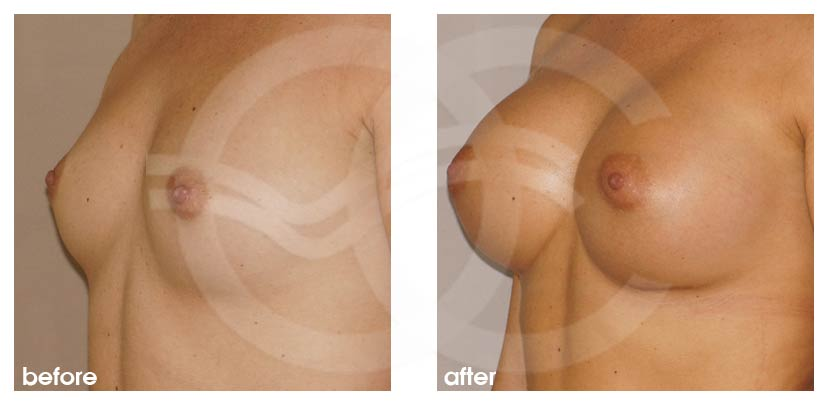 Breast Augmentation Before After Silicone Implants 350cc Round High Profile Photo side Ocean Clinic Marbella Spain