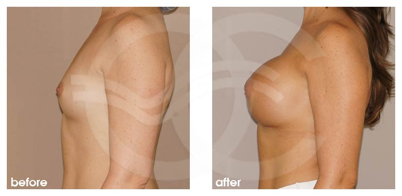 Breast Augmentation Before After Silicone Implants 350cc Round High Profile Photo profile Ocean Clinic Marbella Spain