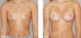 Breast Augmentation Before and After Photo Ocean Clinic case 18 Marbella Málaga
