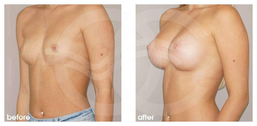 Breast Augmentation Before After Silicone Implants 300cc Anatomical High Profile Photo side Ocean Clinic Marbella Spain